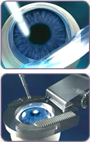custom lasik eye surgery