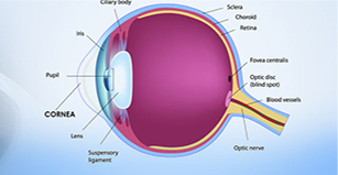 glaucoma eye surgery